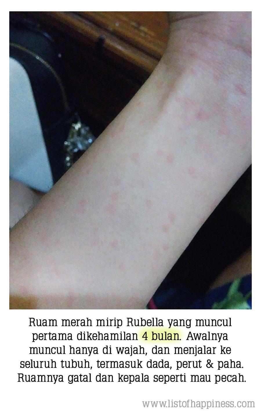 ruam1